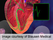 For patients with paroxysmal atrial fibrillation who undergo atrial fibrillation ablation
