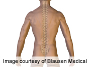 Surgery and more conservative treatments provide similar long-term outcomes for people with spinal stenosis