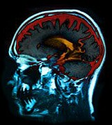 Smaller hippocampal volumes are seen in patients with major depressive disorder