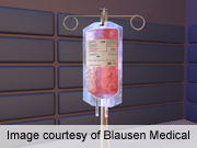 Receiving a blood transfusion during coronary artery bypass grafting surgery may raise a patient's risk of pneumonia