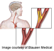 Mortality risk in older Medicare patients who undergo carotid artery stenting is high