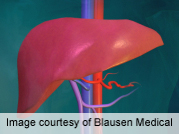 For liver transplantation recipients with model for end-stage liver disease scores above 11