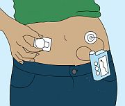 Modern insulin pump technologies could be further improved by adopting a more rigorous