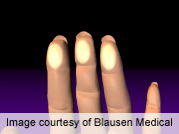 For patients with Raynaud's phenomenon