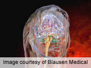 Researchers have reviewed recent scientific literature and concluded that a number of classes of drugs are effective for treating acute migraine. The study