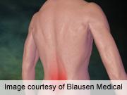 Preoperative back pain and individual pain sensitivity can predict postoperative pain following lumbar surgery