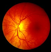 Experienced eye care clinicians use holistic image information