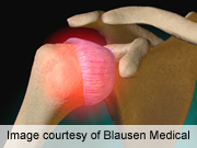 For patients with acute shoulder pain