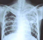 More than 300 students and staff at Olathe Northwest High School were tested last week after a reported case of tuberculosis at the school. The testing identified 27 more people with tuberculosis infection