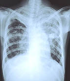 U.S. health authorities are trying to find anyone who may have had contact with a woman who has been diagnosed with a highly drug-resistant form of tuberculosis.