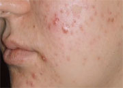 The majority of oral antibiotic course durations for adult acne follow guidelines