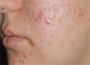 Insulin resistance does not appear to be a significant factor in post-adolescent acne