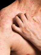 Adults with eczema may also have an increased risk of heart disease and stroke