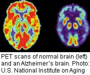 Damage to the brain's white matter may be an early sign of certain types of Alzheimer's disease