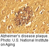 A drug called solanezumab may slow Alzheimer's disease progression by about one-third