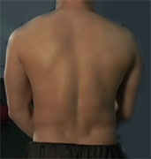 High-frequency spinal cord stimulation is superior to conventional lower-frequency treatment for relief of chronic back and leg pain