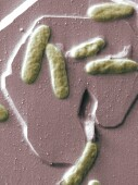 Rapid-onset bacterial infections can occur after non-ablative fractional resurfacing with 1