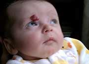 Propranolol (Inderal) appears to be effective in treating infantile hemangiomas
