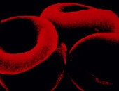 Certain genetic mutations may be correlated with response to therapy and prognosis in aplastic anemia