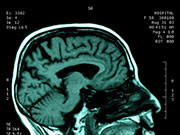 More than nine in 10 epilepsy patients who had brain surgery to try to control their seizures are happy they did so