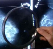 Many breast cancer patients who are eligible for breast-conserving surgery still choose to have the entire breast removed