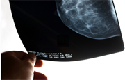 The percentage of women with early-stage breast cancer who undergo breast-conserving therapy has risen slowly in recent years