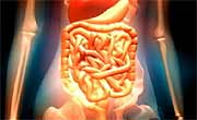 Menopausal hormone therapy may raise the risk for lower gastrointestinal bleeding