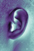 Cochlear implants not only boost hearing in seniors with severe hearing loss
