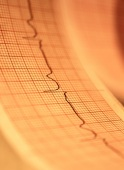 Most patients with atrial fibrillation (AF) and systolic heart failure who undergo ablation have AF recurrence at five years
