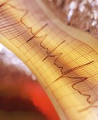 Safe levels of exercise differ for men and women with atrial fibrillation