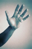 Low-dose oxybutynin is an effective treatment for hyperhidrosis