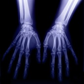 The incidence of carpal tunnel syndrome does not appear to be elevated among patients with rheumatoid arthritis