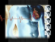 As many as one-quarter of people with atrial fibrillation who have a low risk of stroke are prescribed anticoagulation unnecessarily