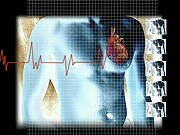 One in 10 acute myocardial infarction patients without a previous diagnosis of diabetes mellitus (DM) have underlying DM