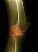 Structural joint damage measured with magnetic resonance imaging can predict knee replacement in the following year
