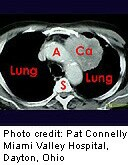 An experimental test which checks sputum for three microRNA biomarkers of lung cancer was able to distinguish early-stage lung cancer from noncancerous nodules the majority of the time