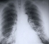 Patients with stage IIIB non-small-cell lung cancer could live longer by undergoing surgical resection