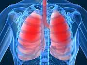 The annual incidence of community-acquired pneumonia requiring hospitalization is 24.8 cases per 10