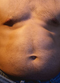 The incidence of paradoxical adipose hyperplasia following cryolipolysis may be higher than previously described