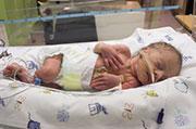 For infants with necrotizing enterocolitis