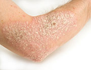 Preliminary trial results suggest that an experimental drug may be more efficacious for psoriasis than the current standard treatment. The results were published in the July 9 issue of the <i>New England Journal of Medicine</i>.