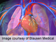 Older patients hospitalized with pneumonia appear to have an increased risk of myocardial infarction