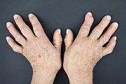For patients with rheumatoid arthritis
