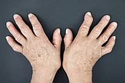 Articles relating to arthritis treatment