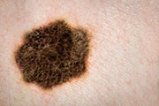 Not all melanoma patients need surgery to remove lymph nodes surrounding their tumor