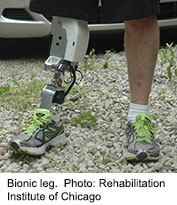 Scientists say they're making progress toward developing a motorized artificial lower leg that automatically adjusts to changes in movement