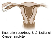 For women with abnormal uterine bleeding and hysteroscopically diagnosed endometrial polyps