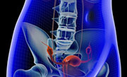 Chemotherapy dose reduction is associated with worse survival in ovarian cancer