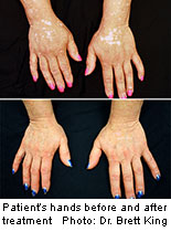 Researchers report that a drug for rheumatoid arthritis may be a promising treatment for vitiligo. The findings were published online June 24 in <i>JAMA Dermatology</i>.