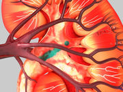 The majority of oncocytic renal neoplasms will grow with time